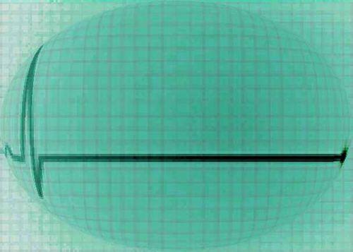Elettroencefalogramma-piatto